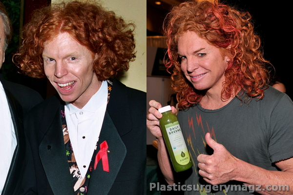 Carrot Top Before Amp After Plastic Surgery Photos Plastic